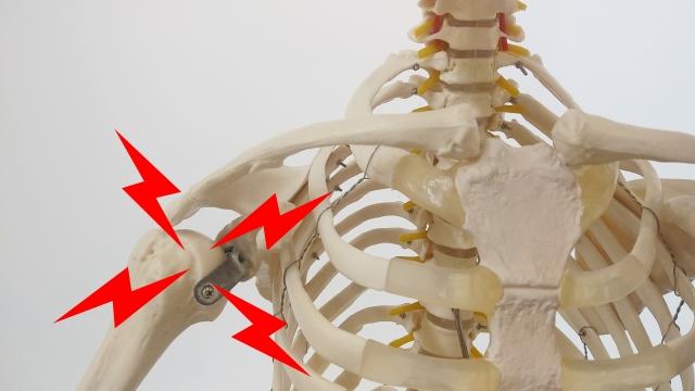 肩を痛めた骨模型