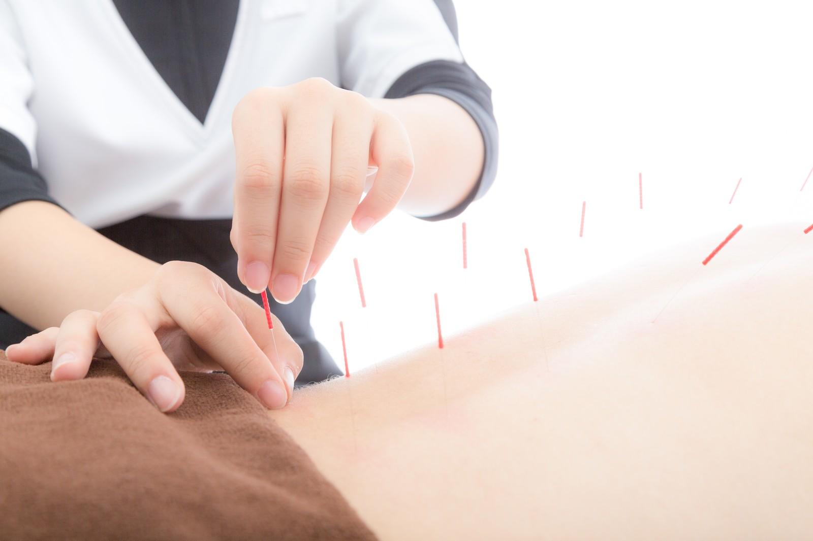 背中に刺す鍼灸師