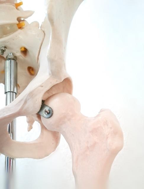 股関節 骨模型