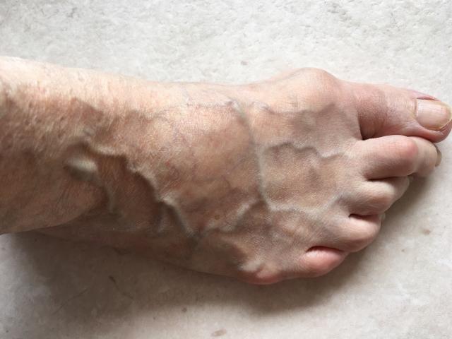 中高年の女性の足