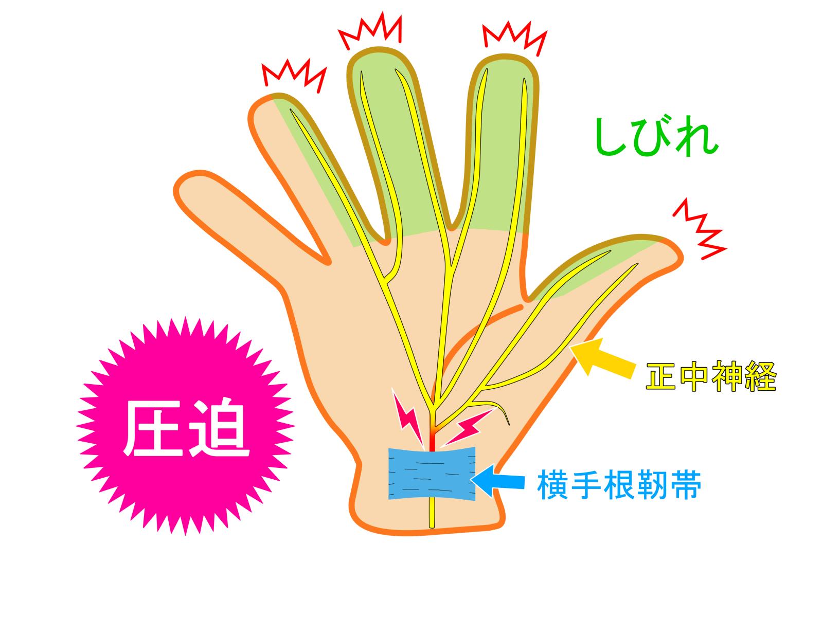 手根管症候群 イラスト