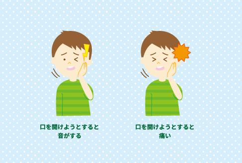 顎関節症 症状 イラスト