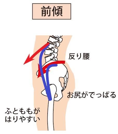 腸腰筋 骨盤 イラスト